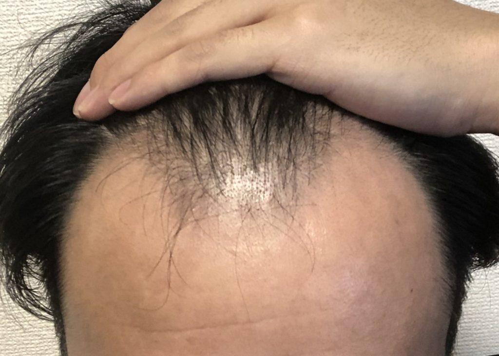 薄毛治療7日目